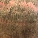 FUT Tekniği ile Saç Ekimi