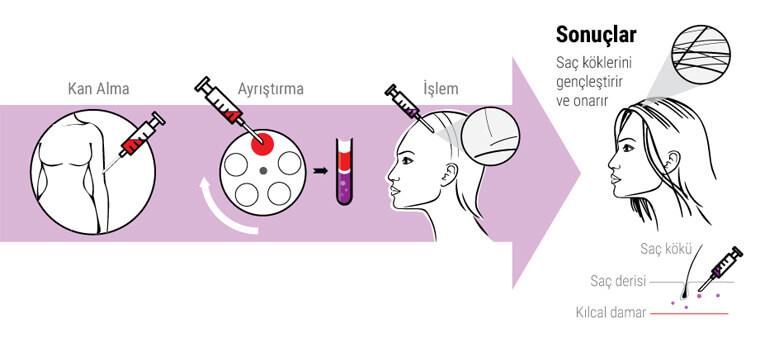 PRP saç tedavisi nasıl yapılır?